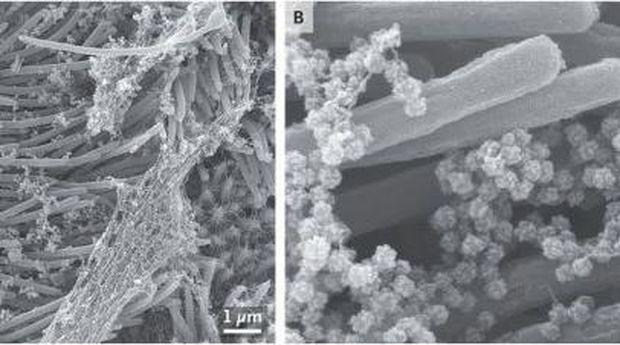 sel terinfeksi virus corona
